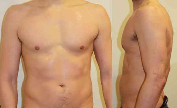 84kg EFRS - Extreme Fatness Reduction System